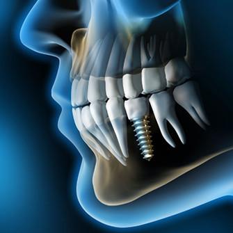 chirurgia dentale bologna