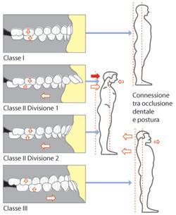 gnatologia posturale patologie dentali modificazioni occlusali e articolari bologna