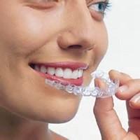 ortodonzia bologna
